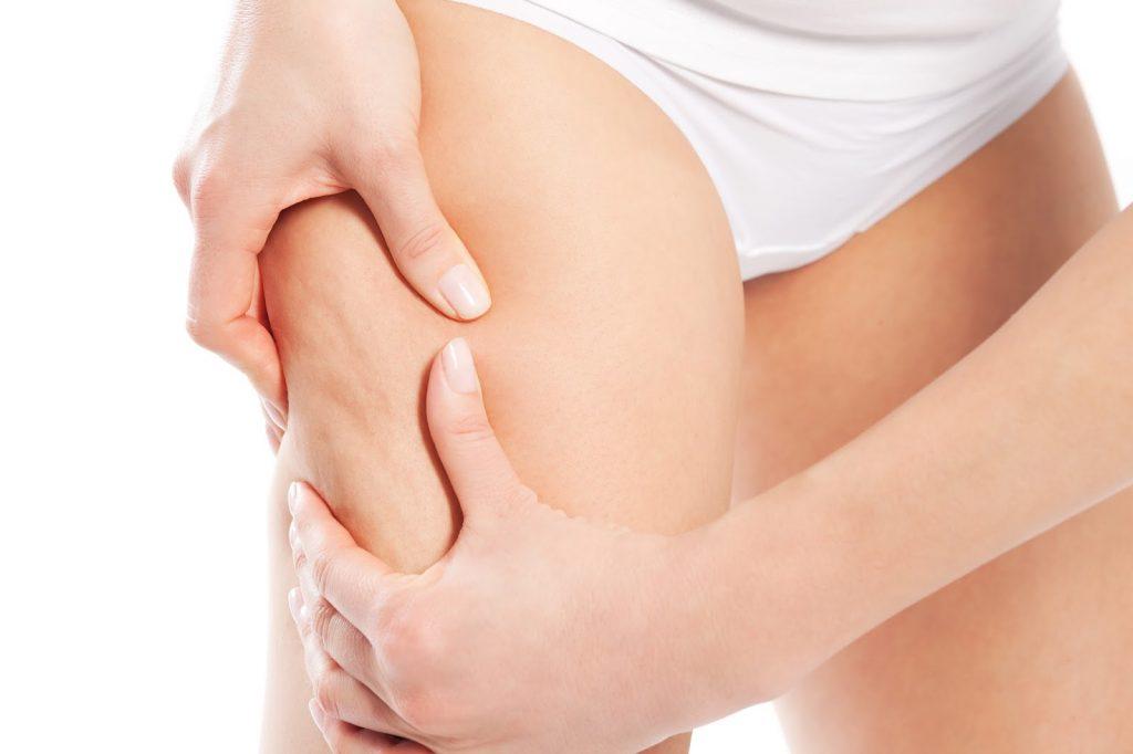 elimina celulitis con los consejos de Gonna Fitness Center