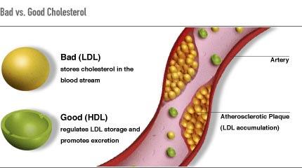 reduce colesterol con ayuda de ejercicio